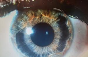 Синдром Аксенфельда-Ригера