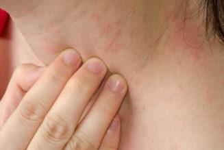 как боротся с аллергией