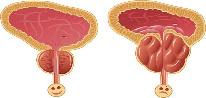 Доброкачественная гиперплазия предстательной железы лечение ...