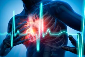 Инфаркт миокарда: методы лечения