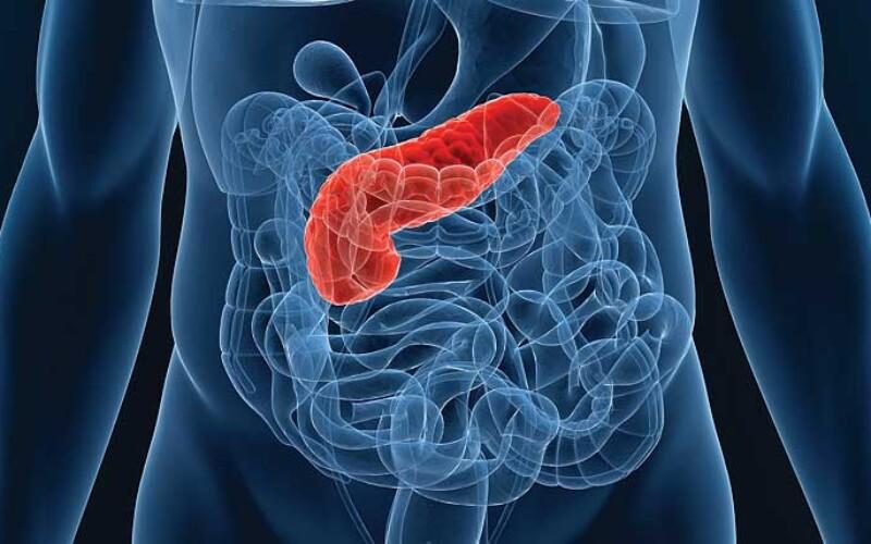 Острый панкреатит – симптомы и лечение