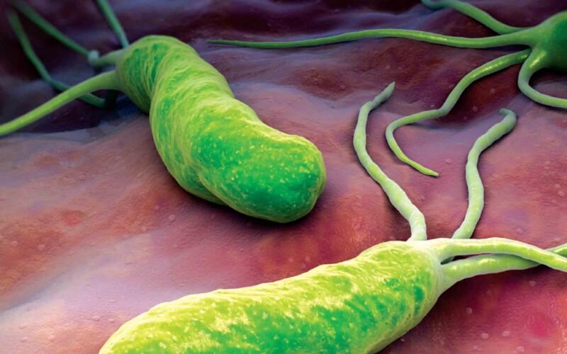 Язвенная болезнь желудка и двенадцатиперстной кишки: причины, симптомы, лечение