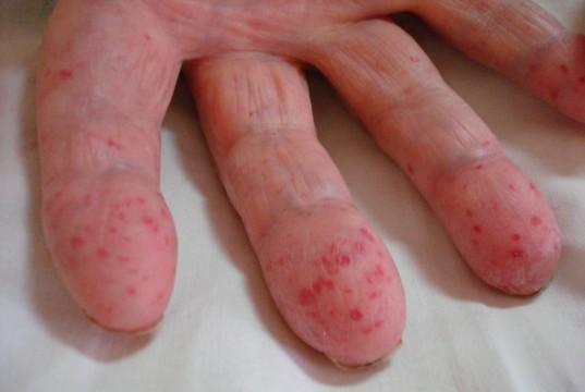 болезнь Рандю-Ослера-Вебера