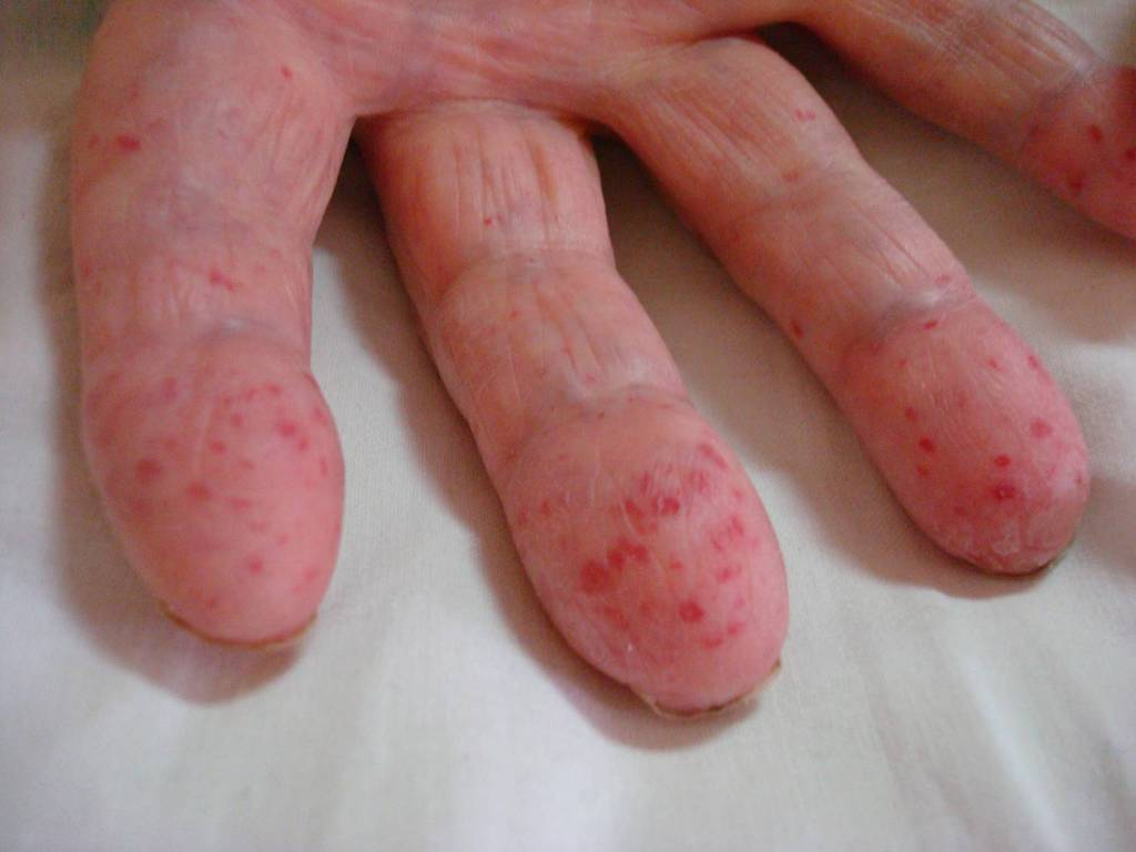 болезнь рандю фото ослера