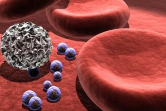 Cиндром Бернарда-Сулье: причины, диагностика, лечение