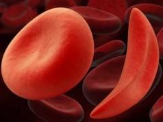 серповидно-клеточная анемия