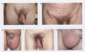 Дифференциальная диагностика грыж