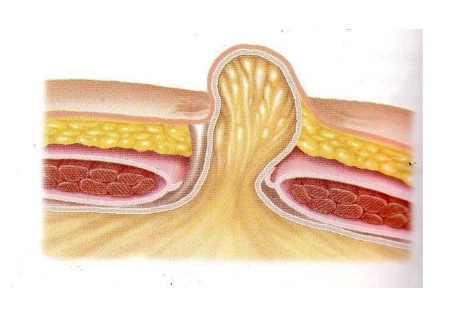 Ущемленная грыжа - симптомы болезни, профилактика и лечение Ущемленной грыжи, причины заболевания и его диагностика на EUROLAB