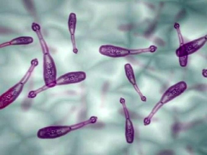 Эхинококкозы у человека | MEDJOURNAL