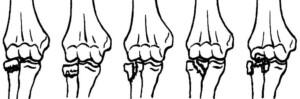 Варианты переломов головки и шейки лучевой кости