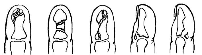 Варианты переломов ногтевой фаланги