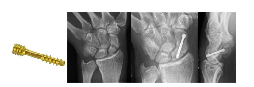 Использование винта Герберта для стабилизации отломков ладьевидной кости