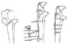 Металлоостеосинтез перелома локтевого отростка пластиной с винтами