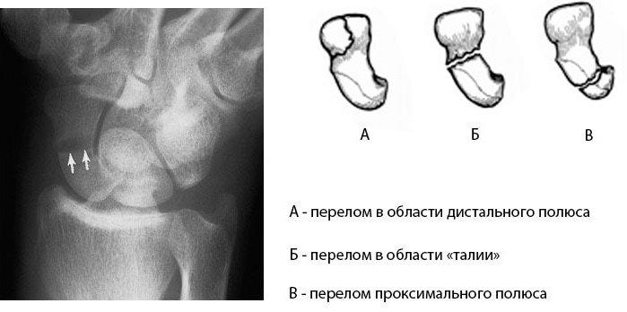 Основные типы переломов ладьевидной кости