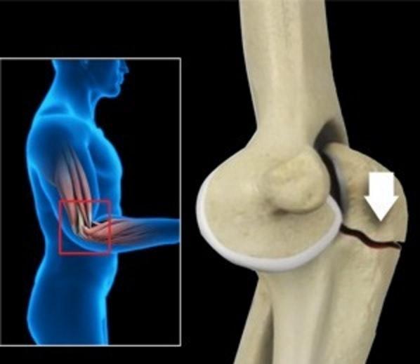 Признаки перелома в локтевом суставе суставной мышь