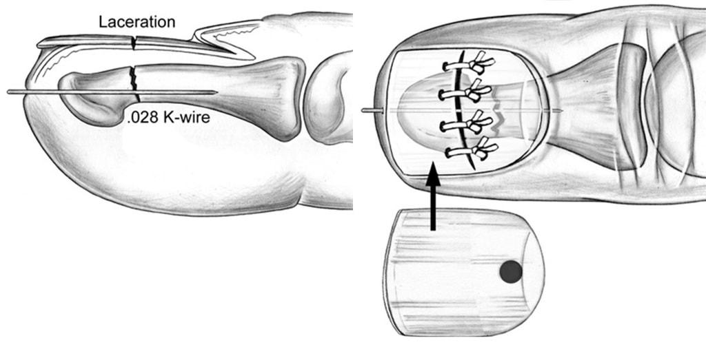 Перелом ногтевой фаланги в сочетании с повреждением ногтевого ложа