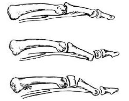 Смещение отломков при переломе средней фаланги пальцев
