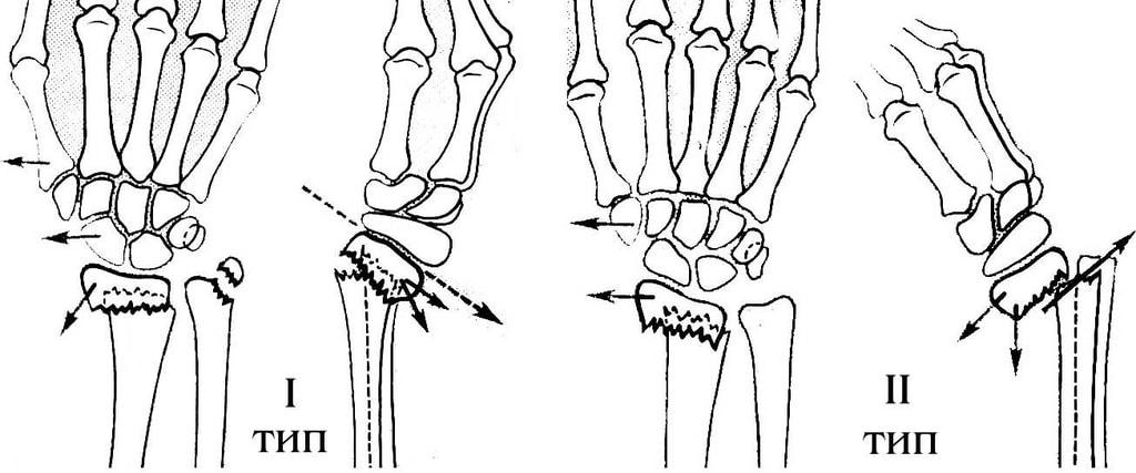 Типы перелома лучевой кости в типичном месте