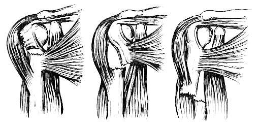 Типы смещения отломков при переломах верхней трети диафиза плеча