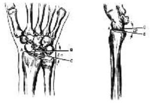 Угол наклона суставной поверхности лучевой кости в прямой и боковой поверхностях