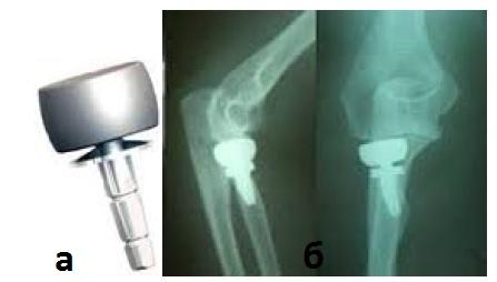 Эндопротезирование головки лучевой кости: а – вид эндопротеза головки лучевой кости,б – рентгенография локтевого суставапосле эндопротезирования головки лучевой кости