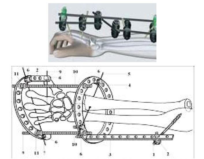 Использование аппаратов внешней фиксации при многооскольчатых внутрисуставных переломах лучевой кости