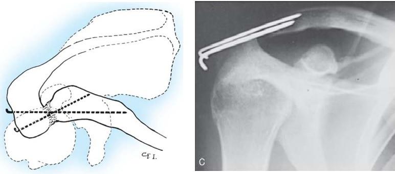 Фиксация акромиально-ключичного сустава спицами