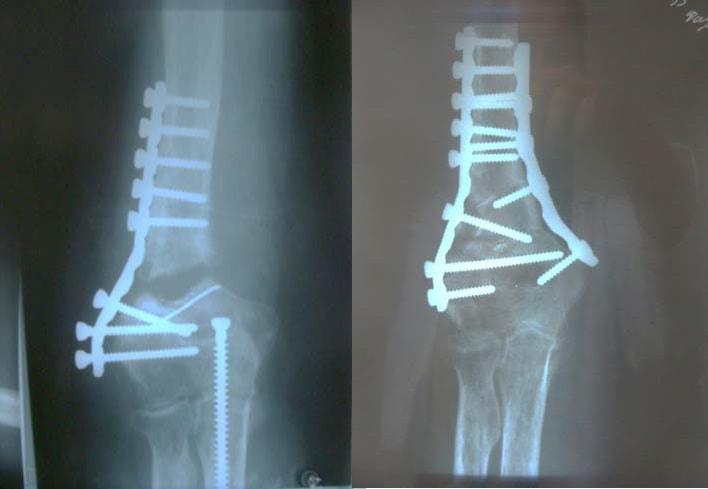 Гипотрофический ложный сустав с дефектом кости после оперативного лечения оскольчатого надмыщелкового перелома плечевой кости. Повторное оперативное лечение – костная аутопластика, металлоостеосинтез