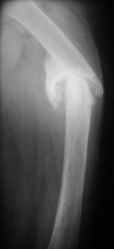 Истинный фиброзно-синовиальный ложный сустав бедренной кости