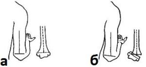 Линия Маркса: а – в норме, б – при переломе дистального отдела плечевой кости