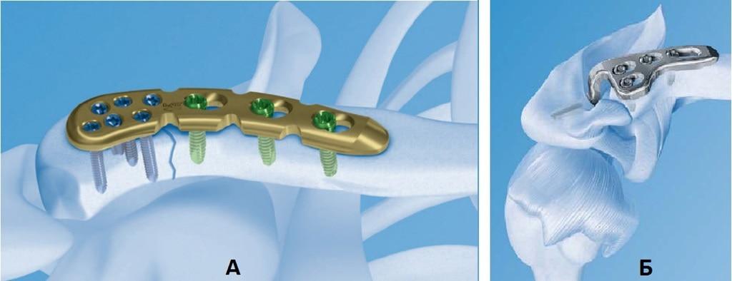 А. Остеосинтез акромиального конца ключицы пластиной с угловой стабильностью винтов; Б. Фиксация акромиально-ключичного сочленения с помощью крючковидной пластины