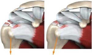 Сближение разорванных краев надостной мышцы при отведении плеча