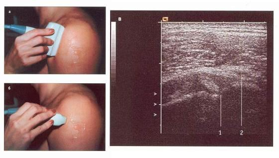 Сонографическое исследование плечевого сустава