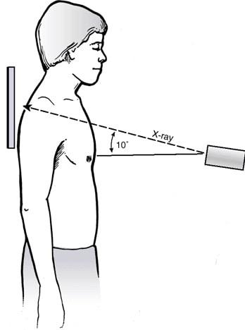 Техника выполнения рентгенографии наплечья по Zanca