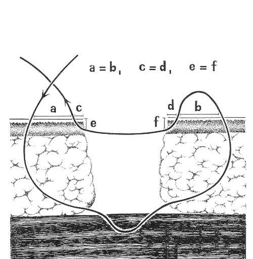 Вертикальный матрацный шов