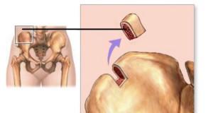 аутотрансплантат