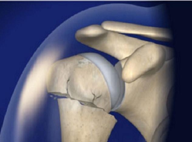 Перелом плечевой кости со смещением симптомы и диагностика