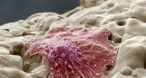Регенерация кости
