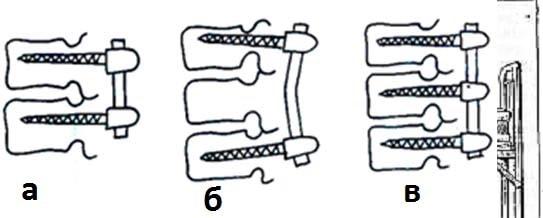 Варианты стабилизации в зависимости от количества фиксируемых сегментов и уровней: а) – моносегментарная,б – бисегментарная двухуровневая, в – трехуровневая