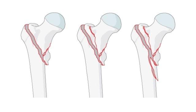 Вертельные переломы