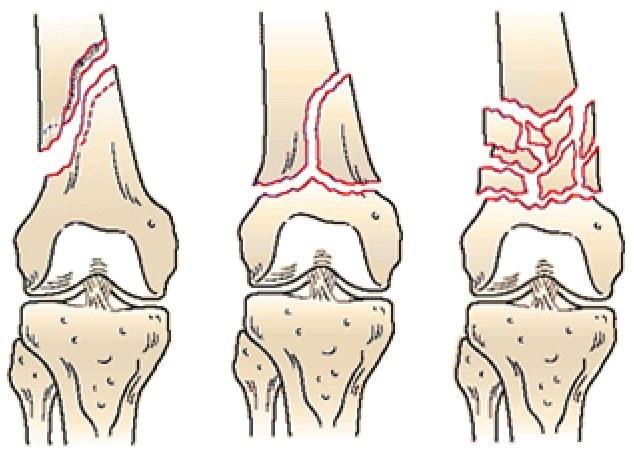 Внесуставные переломы дистального (нижнего) отдела бедренной кости