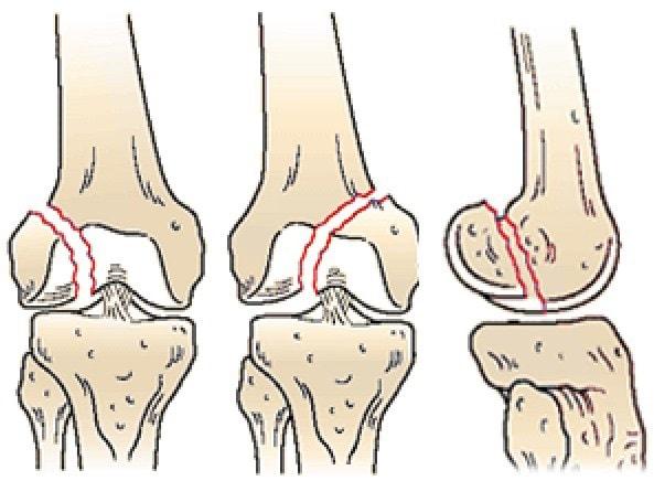 Внутрисуставныые переломы с изолированным повреждением мыщелка