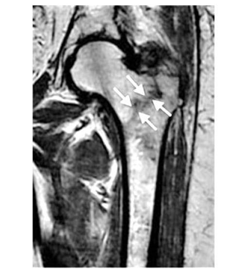 Магнитно-резонансная томограмма при базисцервикальном переломе