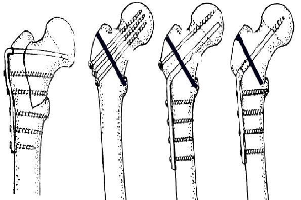 Остеосинтез вертельного перелома пластиной АО с фиксированным углом 95°, винтами, Г-образной пластиной и винтом, пластиной DHS