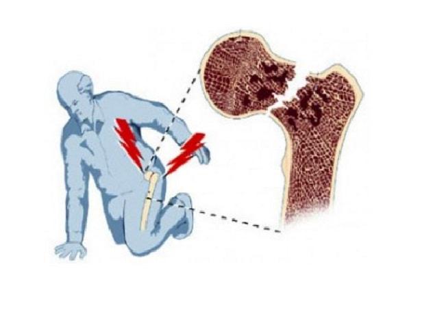 Перелом шейки бедренной кости — Суставы