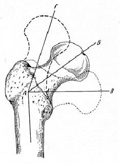 Положение шейки и головки бедра при нормальном шеечно-диафизарном угле (АБ); при coxa vara (АВ); при coxavalga (АГ)