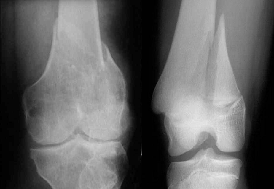 Рентгенограмма надмыщелкового перелома и косого перелома с формированием одного фрагмента в прямой проекции