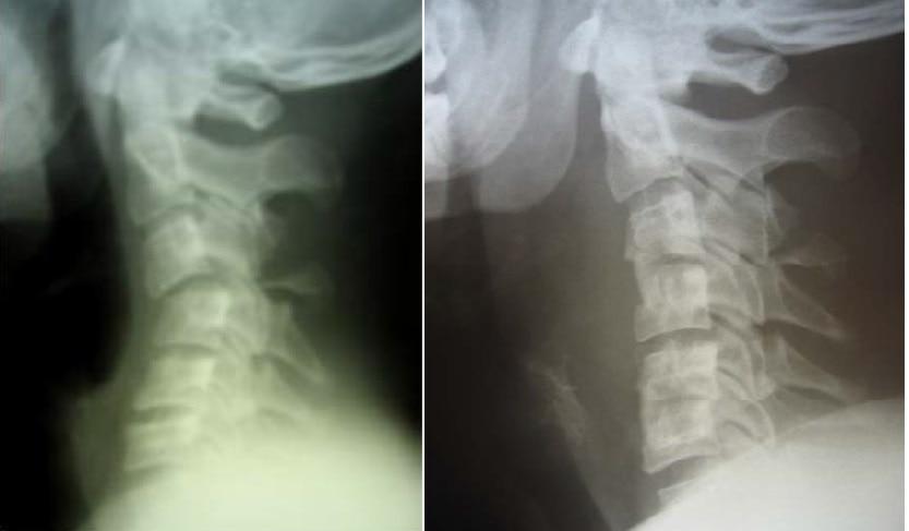 Рентгенограммы пациента с переломо-вывихом С3 до и после оперативного лечения – передней декомпрессии спинного мозга, переднего спондилодеза аутотрансплантатом С3-С4