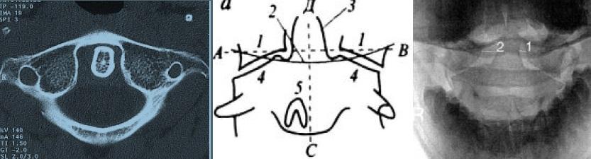 Рентгенологические признаки ассиметрии между зубом С2 и боковыми массами С1