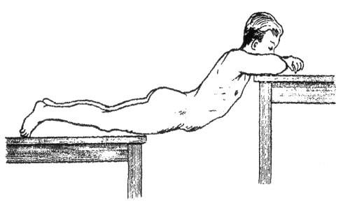 Репозиция перелома позвоночника на разновысоких столах